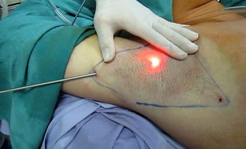 phẫu thuật cắt tuyến mồ hôi nách